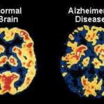 Alzheimer's Disease Natural Remedies