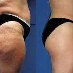 Gеt rid оf cellulite thighs