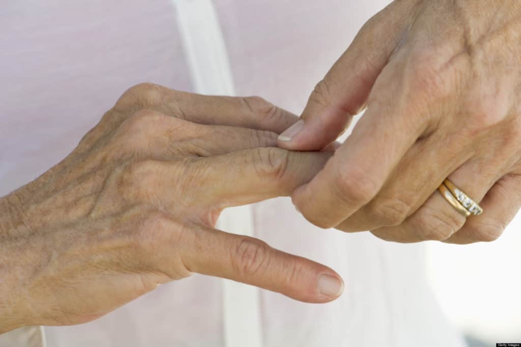natural treatment of arthritis